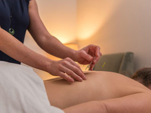 Acupunture treatment from Corvallis Acupuncture & Wellness Center in Corvallis, Oregon