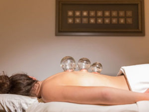 Cupping treatment from Corvallis Acupuncture & Wellness Center in Corvallis, Oregon